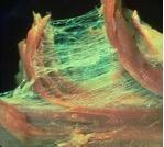 fascia tissue